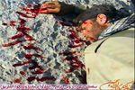 عکس تکاندهنده از یک شهیدحزب الله