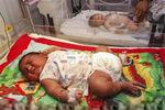 تولد نوزاد 8.5 کیلوگرمی در هند + عکس