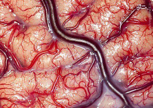 عکس خارقالعاده از مغز انسان زنده